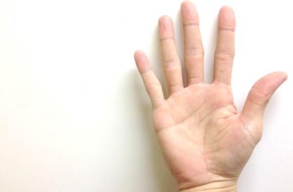 手のひらのほくろは要注意?ガンを疑う3つの理由
