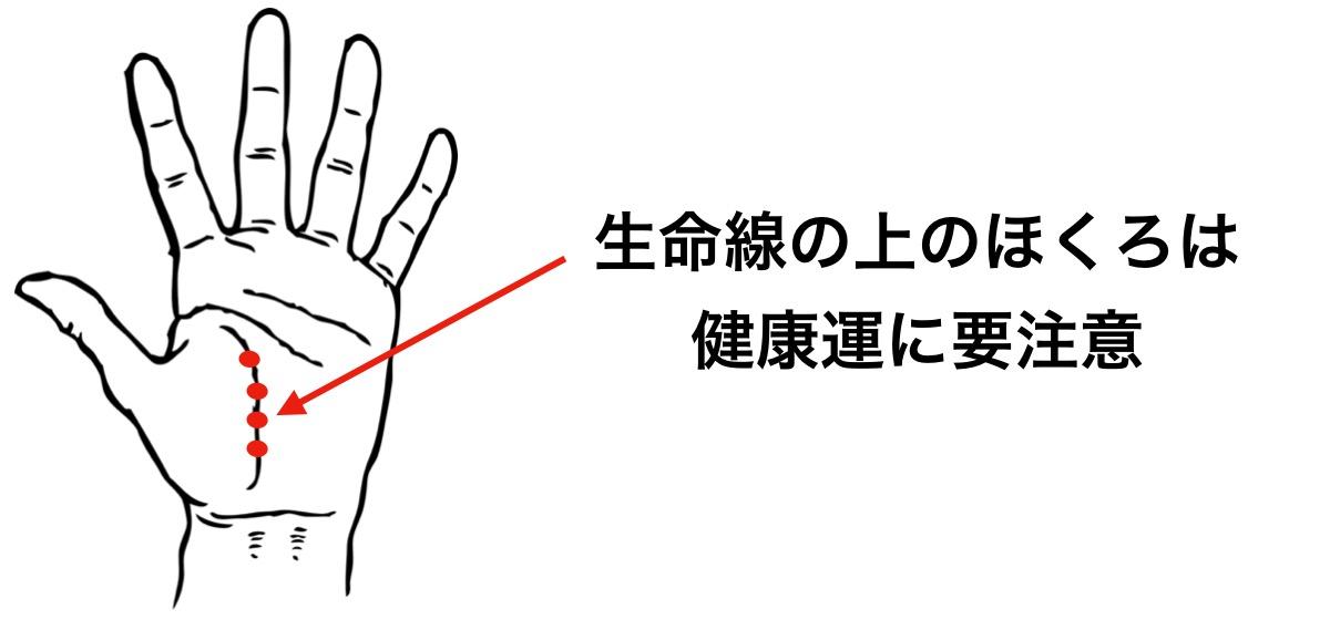 健康運の悪い手のひらのほくろの位置