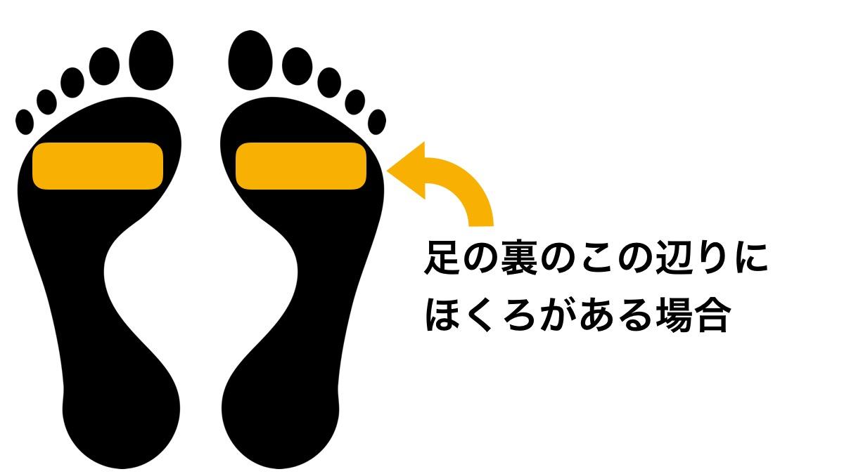 足の裏の指の付け根辺りのほくろ