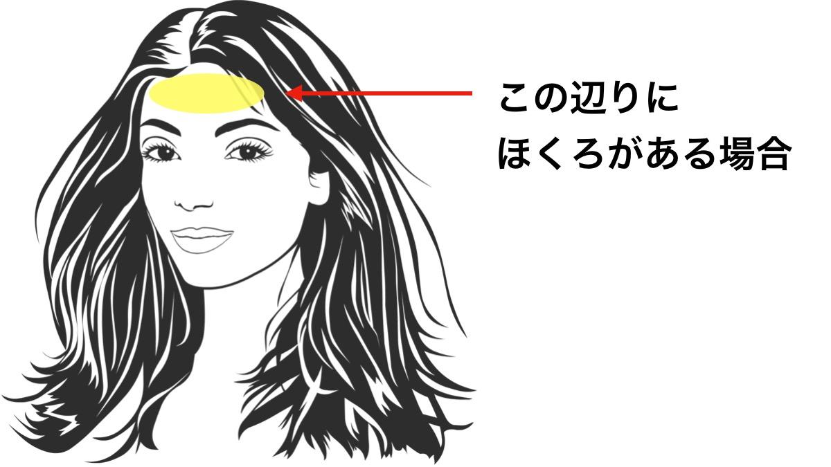 ほくろ占いで額の周辺にあるほくろが意味する運勢とは