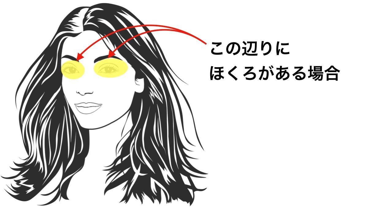 ほくろ占いで目の周りにあるほくろが意味する運勢