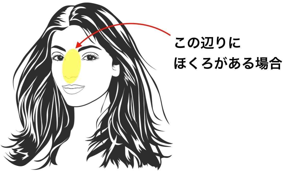 ほくろ占いで鼻の周りにあるほくろが意味する運勢